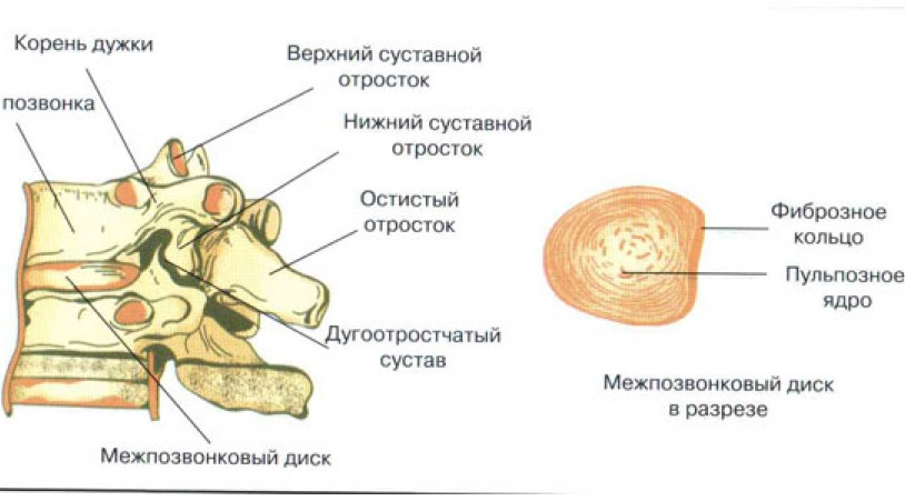 Симптомы и лечение межпозвоночной грыжи