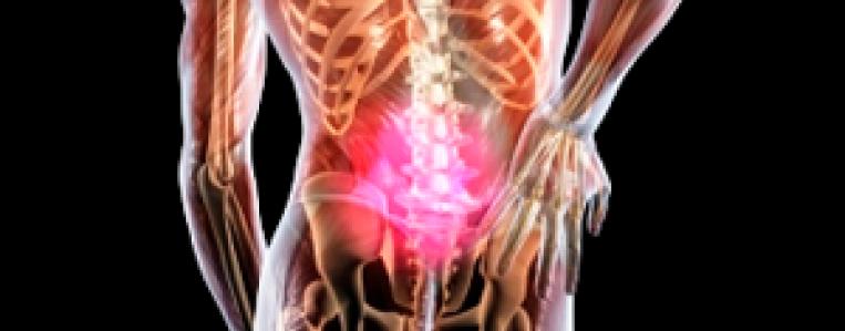 Профилактика и лечение грыжи межпозвонкового диска