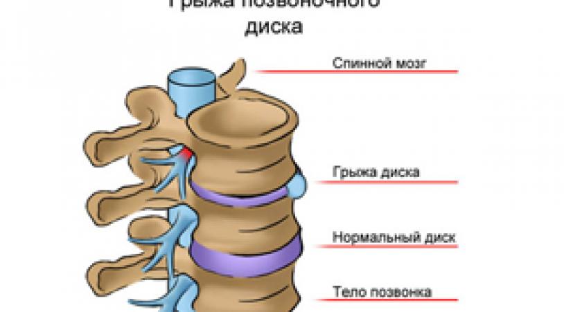 Как лечить грыжу позвоночника? Проявления заболевания, его симптомы и профилактика